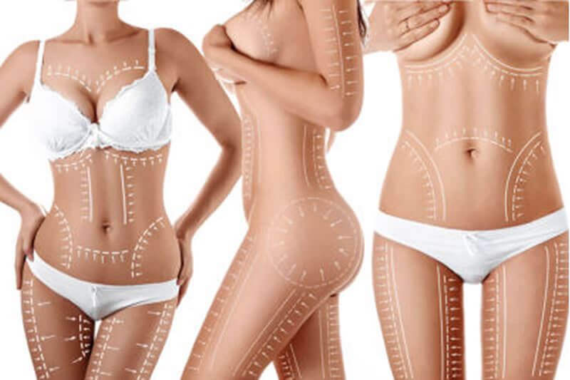 360 lipo sculpting